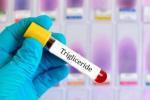 scaderea-trigliceridelor