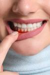 Cum se previne parodontoza în mod natural