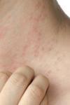 Cum recunoaștem și cum tratăm alergia la căldură