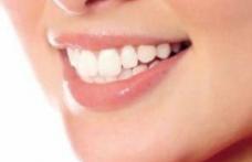 Ce spun dintii despre sanatatea ta?