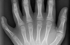 Află când radiografiile devin periculoase
