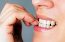 De ce unii oamenii își rod unghiile? Psihologii au un verdict şocant
