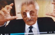 Nicolae Bacalbaşa, dus de urgenţă la spital! Are nasul rupt, un dinte spart şi e rănit la cap