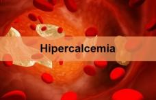 Cum recunoaștem hipercalcemia