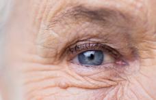 Cum știm că s-a instalat cataracta