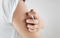 Remediu naturist care tratează iritațiile și eczemele