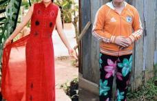 Caz bizar: O femeie de 23 de ani arată ca la 73 de ani