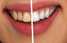 Patru modalități naturale pentru albirea dinților
