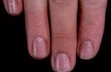 Probleme de sănătate pe care le pot indica unghiile