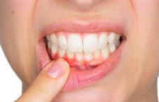 Tratamente din plante pentru abces dentar