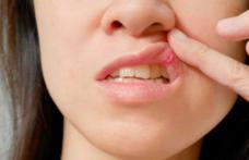 Aftele bucale: de ce apar și cum poți scăpa de ele prin metode naturiste