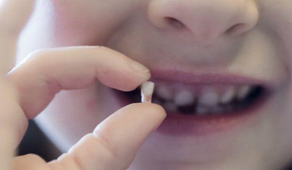 Dinţii de lapte