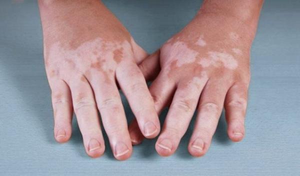 vitiligo-hands
