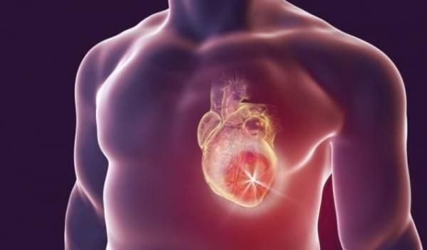 infarctul-semne-simptome